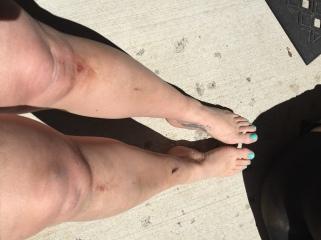 Bruises & Scraps